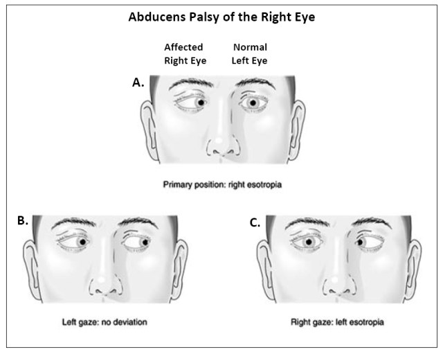 Pictures of pairs of eyes in various positions