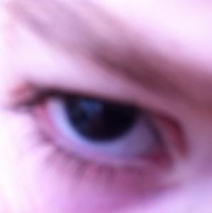 Zoe's eye without an iris